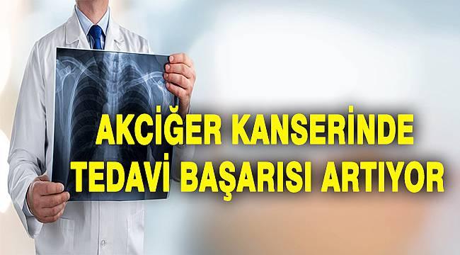 AKCİĞER KANSERİNDE TEDAVİ BAŞARISI ARTIYOR
