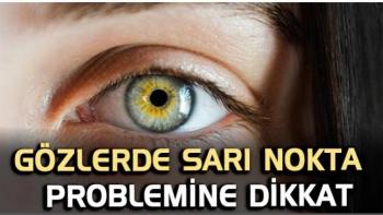 Sarı nokta hastalığı, 65 yaş ve üstü kişilerde daha sık görülüyor